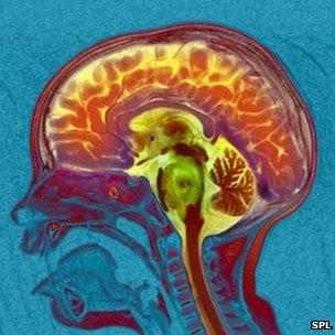 Dyslexia 'Seen in Brain Scans' of Pre-School Children