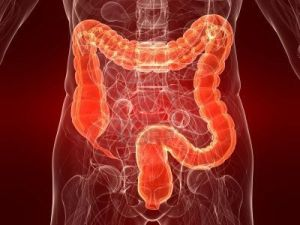 What's Good for Your Heart is Good For Your Colon