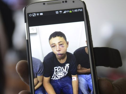 Florida Teen Beaten in Israel Coming Home