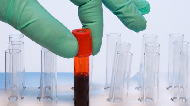 Study: Simple Blood Test May Predict Risk of Suicide