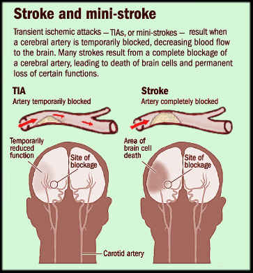 Mini-Strokes May Lead to PTSD, Study Finds