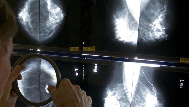 Screening Cuts Risk of Breast Cancer Death Almost in Half