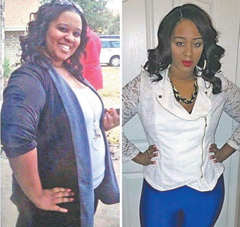Blacks and Weight Loss: Why So Few Go Under the Knife