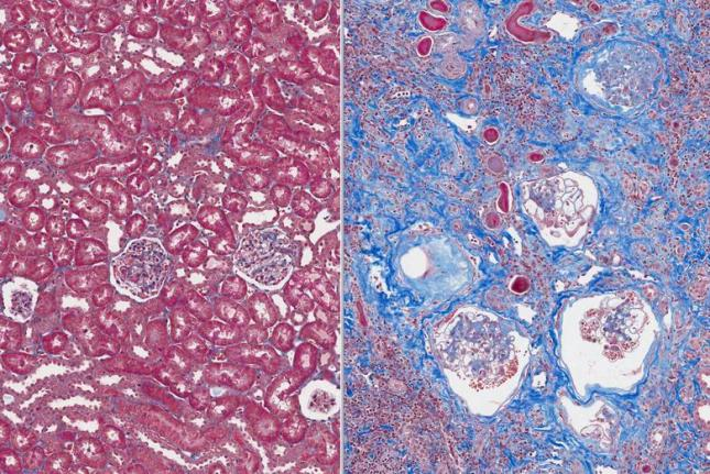 New Therapy May Reverse Cell Damage from Kidney Fibrosis