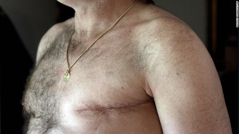 Double Mastectomies for Men with Breast Cancer on the Rise