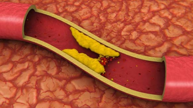 High cholesterol levels can lead to a build-up of plaque in the arteries, which can increase your risk of heart attack and stroke. (iStock photo)