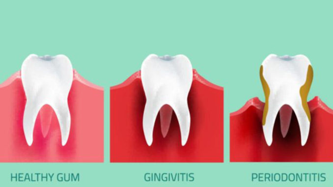 Teeth infographic. Gum disease stages. Editable vector illustration in modern style. Medical concept in natural colors on a light green background. Keep your teeth healthy!